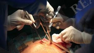 operatie bypass